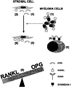 Figure 2: Interaction of the RANKL-OPG system with myeloma cells, bone marrow stromal cells and osteoclasts in the pathogenesis of myeloma bone disease (adapted from Sezer et al, 2003).