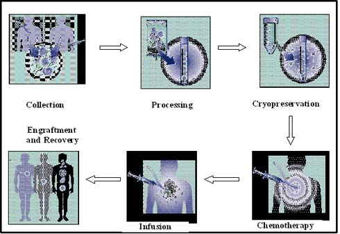 Figure 4: Stem cell transplantation process (adapted from Multiple Myeloma Research Foundation, 2004).